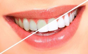 Dental Whitening Procedure